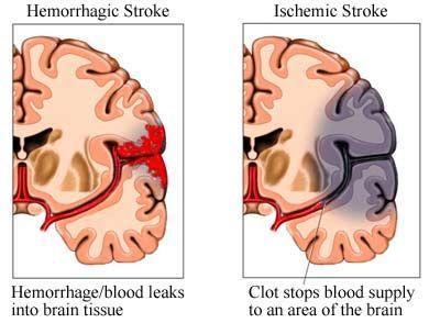 Beberapa Cara Menyembuhkan Gejala Penyakit Stroke