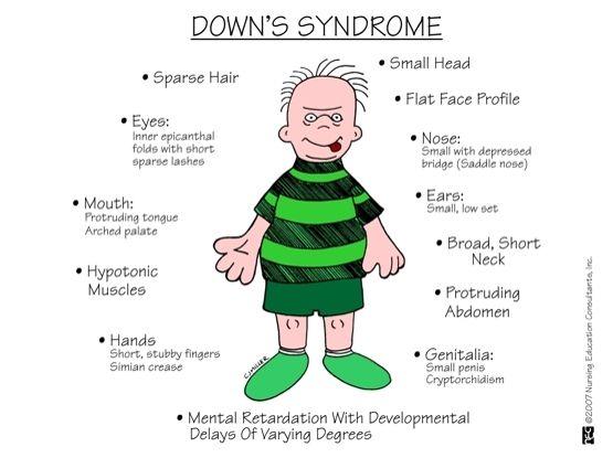 Mengenal Lebih Dekat Terhadap Gangguan Sindrom Down
